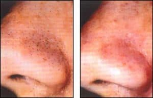 blackheads before and after
